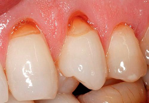 Lesiones no cariosas en los dientes